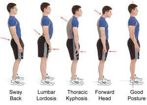 correct bad posture